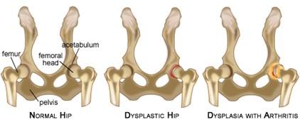 hip dysplasia in dogs diagram of hip bones